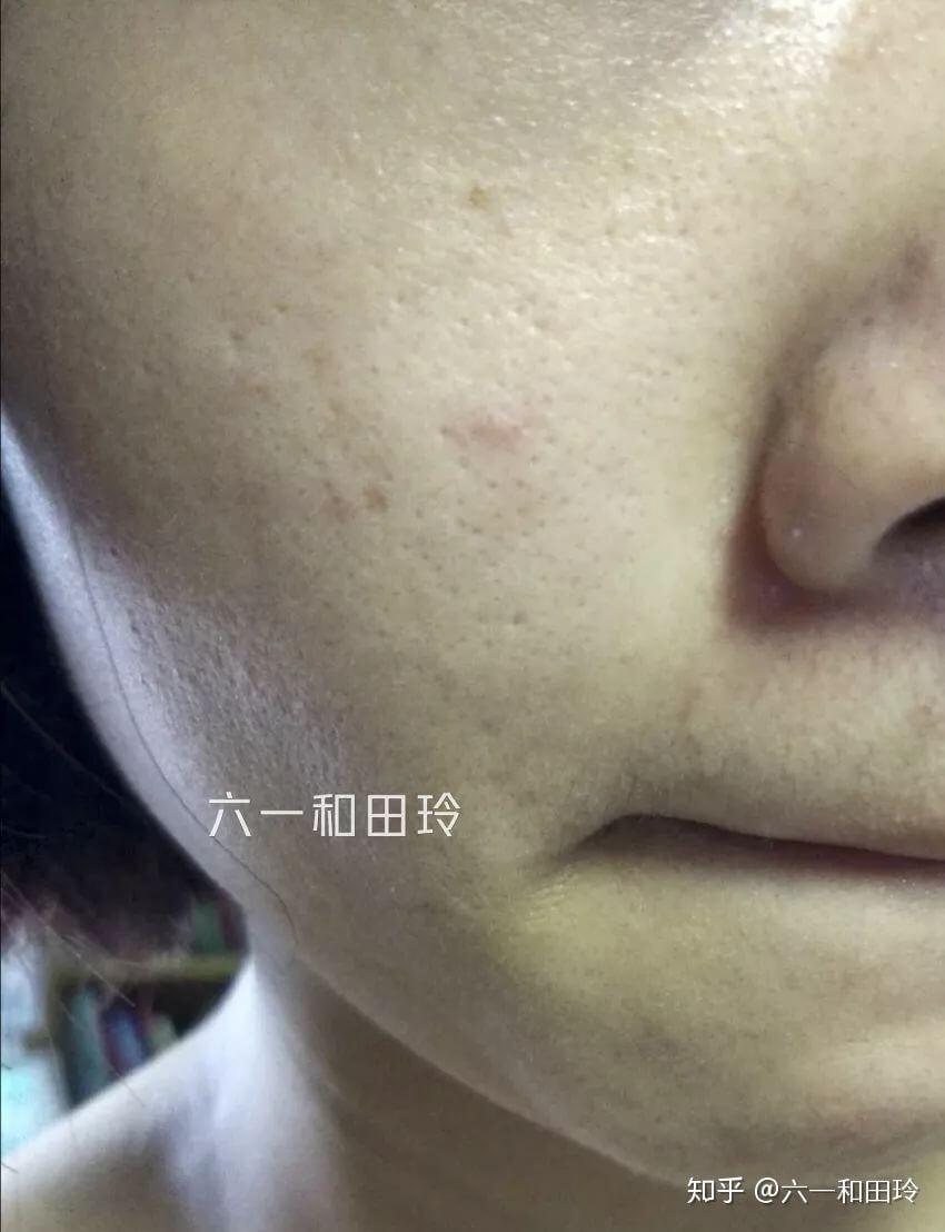 宅在家也要洗脸注意护肤和防晒
